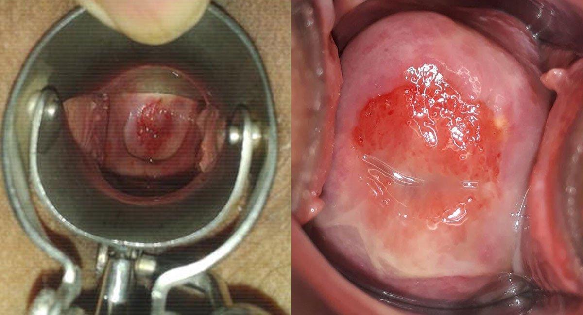 Why Cervical Cancer? 1